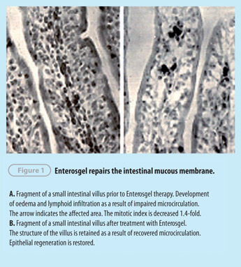 Enterosgel for Gastroenterology